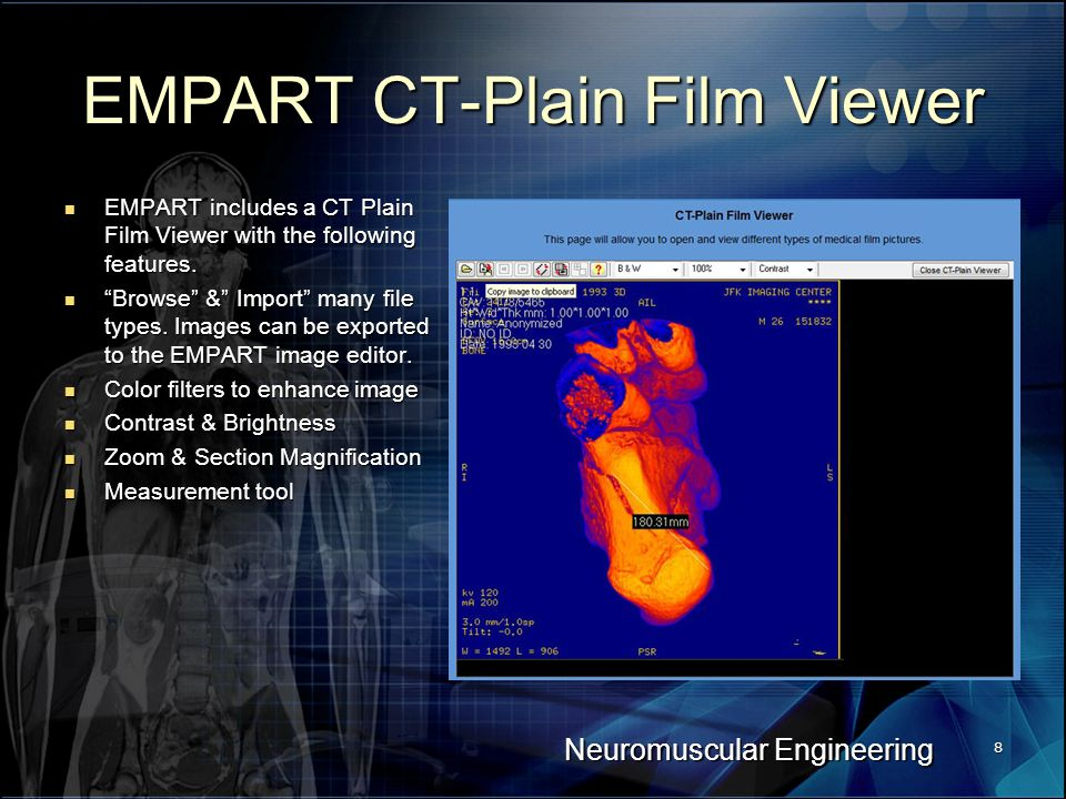 Neuromuscular Engineering 8 EMPART CT-Plain Film Viewer EMPART includes a CT Plain Film Viewer with the following features.
