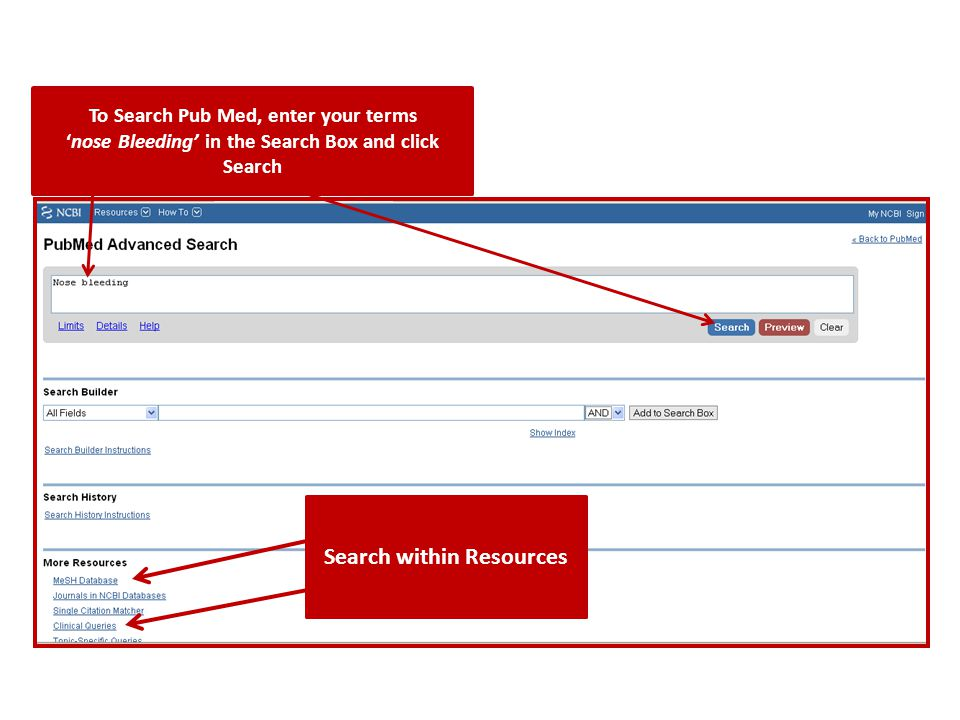 To Search Pub Med, enter your terms 'nose Bleeding' in the Search Box and click Search Search within Resources