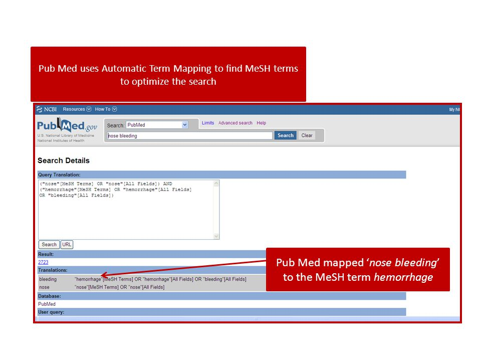 Pub Med uses Automatic Term Mapping to find MeSH terms to optimize the search Pub Med mapped 'nose bleeding' to the MeSH term hemorrhage