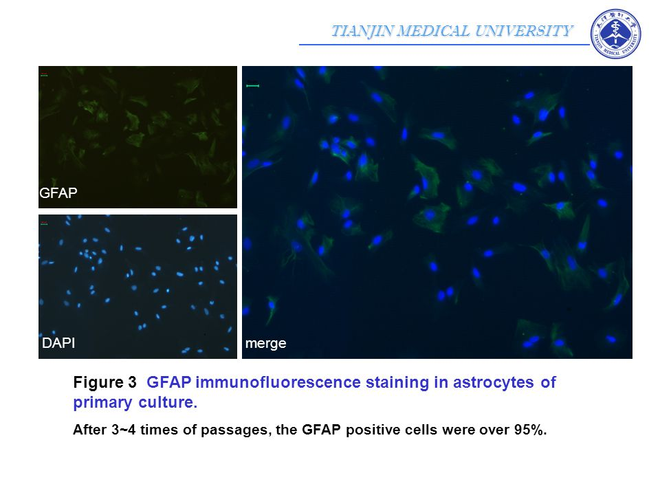TIANJIN MEDICAL UNIVERSITY Figure 3 GFAP immunofluorescence staining in astrocytes of primary culture.