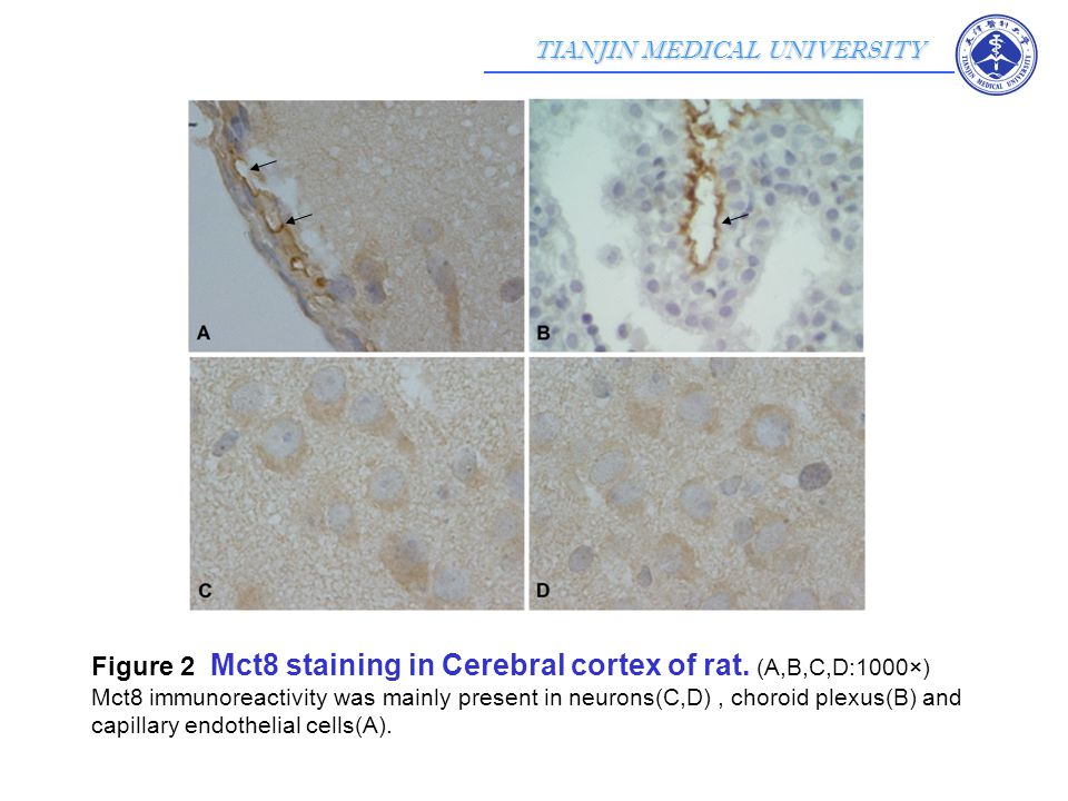 TIANJIN MEDICAL UNIVERSITY Cerebrum from Wistar rat pups aged postnatal day 1 astrocytes were dissociated GFAP staining---- immunofluorescence(IF) Mct8 or Oatp1c1 with GFAP staining---- confocal microscopy the monolayer cell density reached to 80~90%, cells were starved 2 days with the medium without serum 6, 12, 24, 48, 72 hours with T 3 or T 4 of 500 nM, respectively Mct8 and Oatp1c1 expressions ----- Western Blot Experiments in vitro