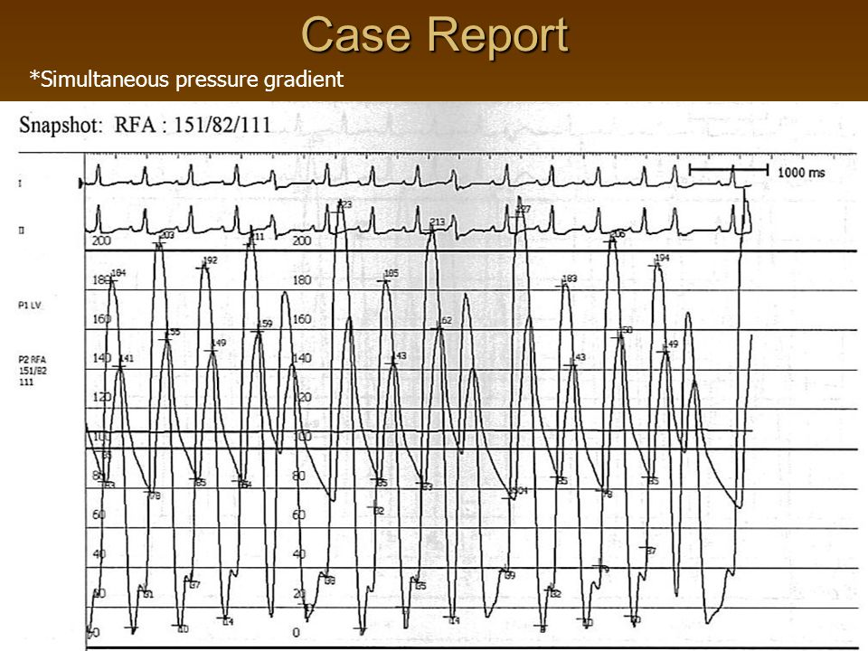 Case Report *Simultaneous pressure gradient
