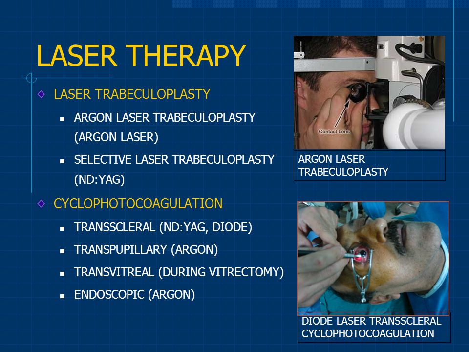 LASER THERAPY LASER TRABECULOPLASTY ARGON LASER TRABECULOPLASTY (ARGON LASER) SELECTIVE LASER TRABECULOPLASTY (ND:YAG) CYCLOPHOTOCOAGULATION TRANSSCLE
