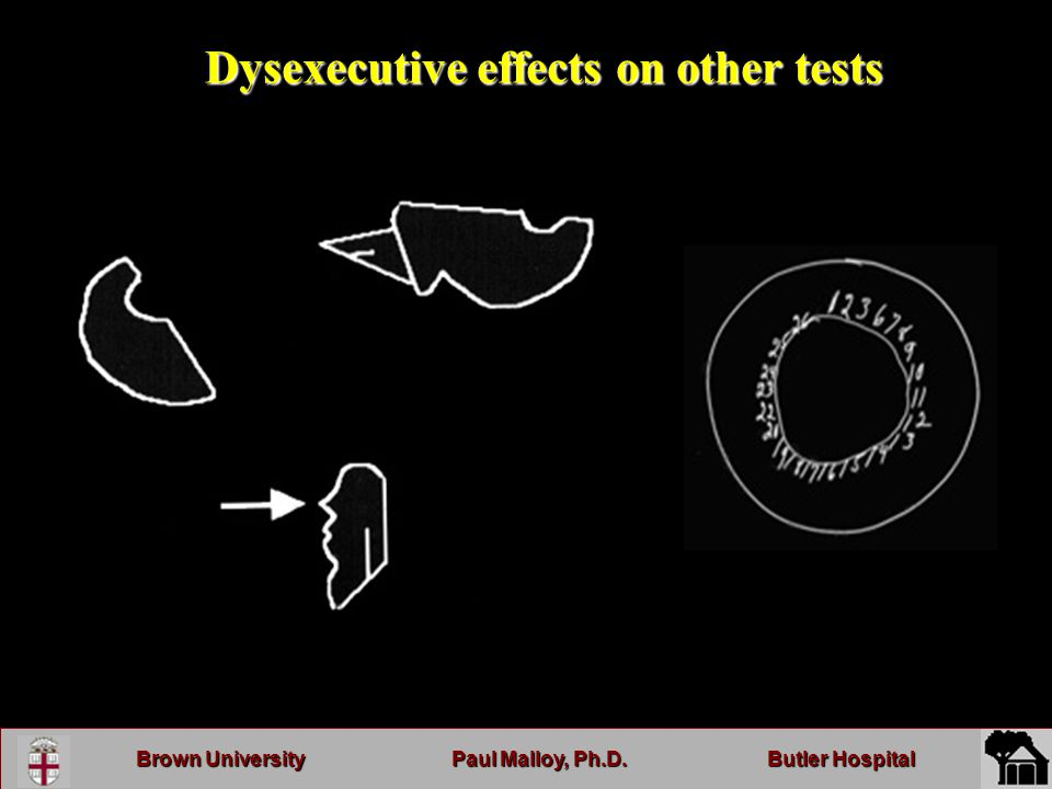 Brown UniversityPaul Malloy, Ph.D.Butler Hospital Dysexecutive effects on other tests