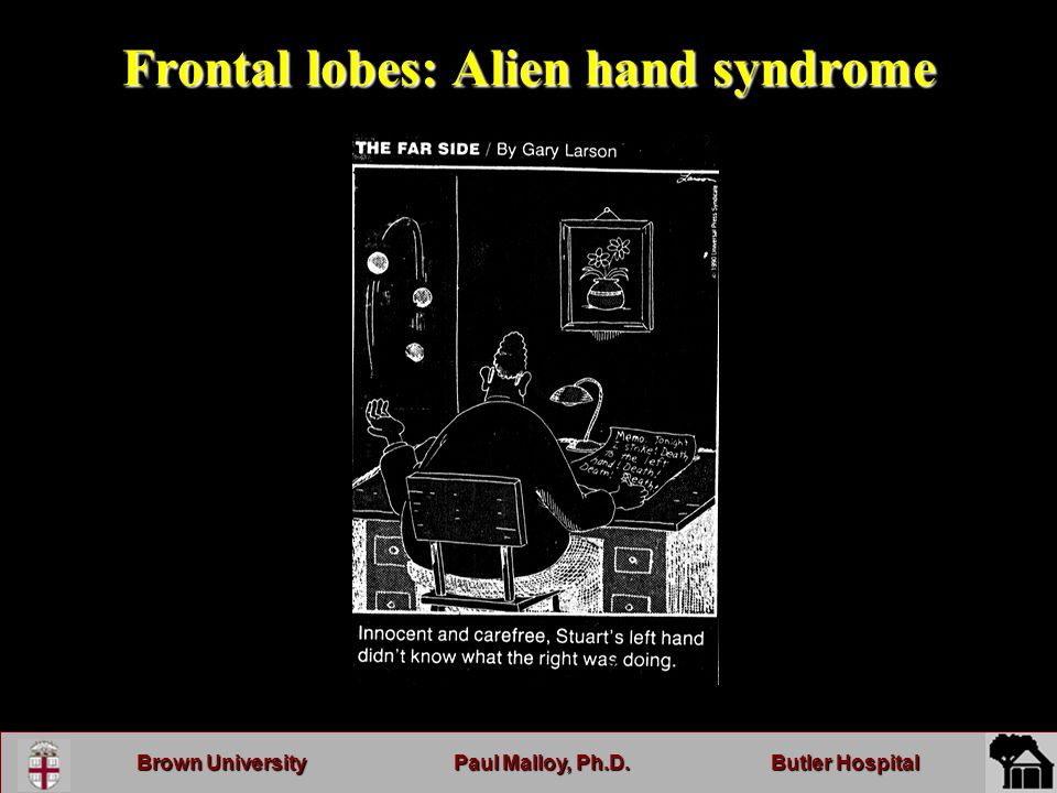 Brown UniversityPaul Malloy, Ph.D.Butler Hospital Frontal lobes: Alien hand syndrome