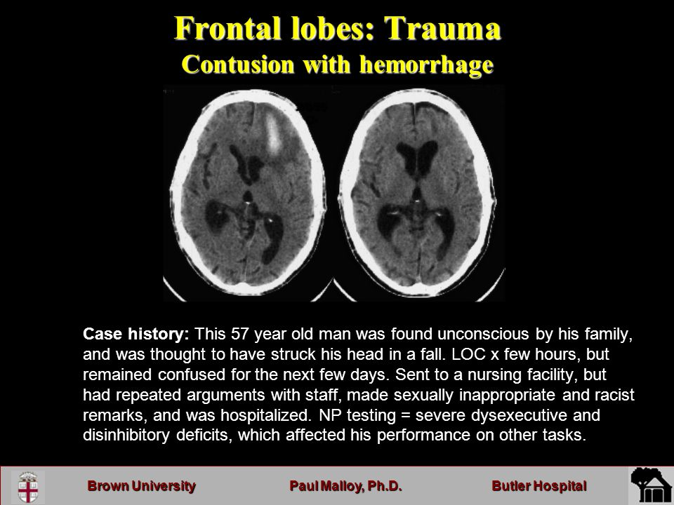 Brown UniversityPaul Malloy, Ph.D.Butler Hospital Frontal lobes: Trauma Contusion with hemorrhage Case history: This 57 year old man was found unconscious by his family, and was thought to have struck his head in a fall.