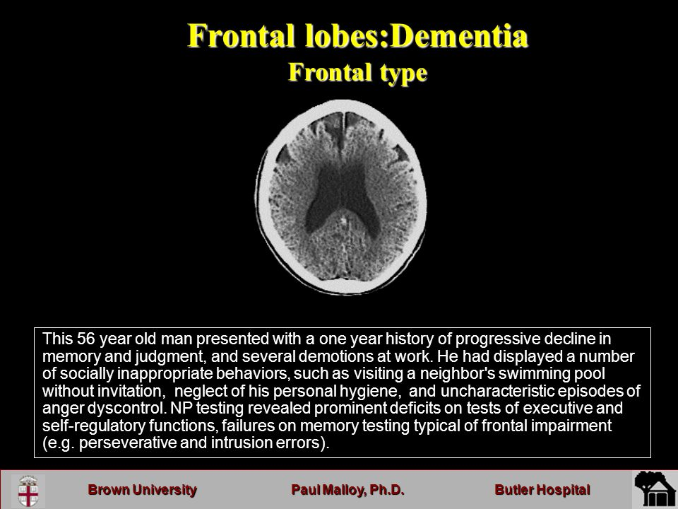 Brown UniversityPaul Malloy, Ph.D.Butler Hospital Frontal lobes:Dementia Frontal type This 56 year old man presented with a one year history of progressive decline in memory and judgment, and several demotions at work.