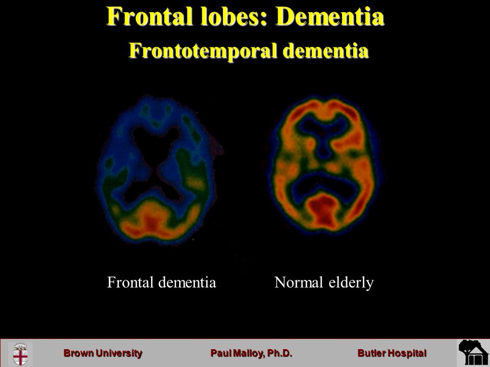 Brown UniversityPaul Malloy, Ph.D.Butler Hospital Frontal lobes: Dementia Frontotemporal dementia Normal elderlyFrontal dementia