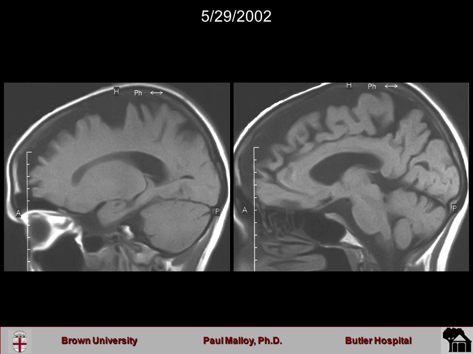 Brown UniversityPaul Malloy, Ph.D.Butler Hospital 5/29/2002