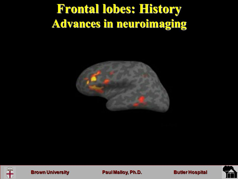 Brown UniversityPaul Malloy, Ph.D.Butler Hospital Frontal lobes: History Advances in neuroimaging