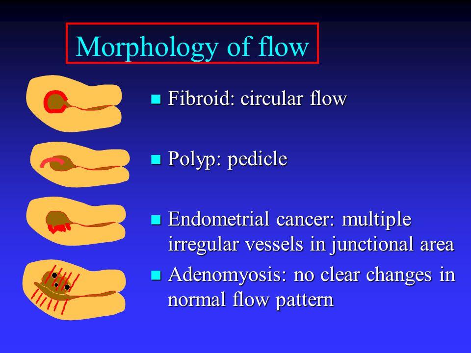 Morphology of flow Fibroid: circular flow Fibroid: circular flow Polyp: pedicle Polyp: pedicle Endometrial cancer: multiple irregular vessels in junct