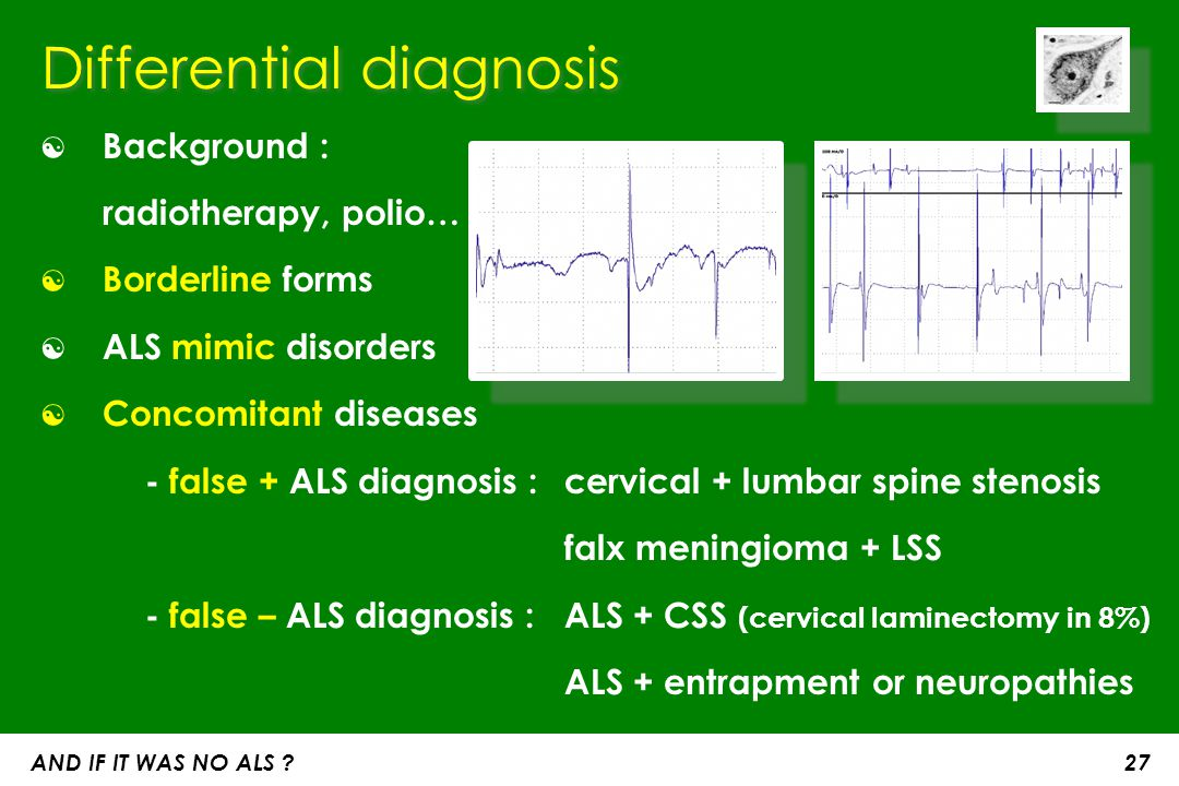 Differential diagnosis ☯ Background : radiotherapy, polio… ☯ Borderline forms ☯ ALS mimic disorders ☯ Concomitant diseases - false + ALS diagnosis : c