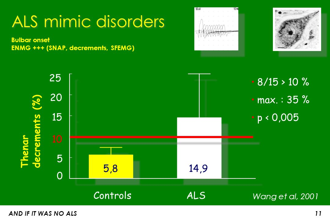 AND IF IT WAS NO ALS 11 Bulbar onset ENMG +++ (SNAP, decrements, SFEMG) ALS mimic disorders Thenardecrements (%) 8/15 > 10 % max. : 35 % p < 0,005 Con