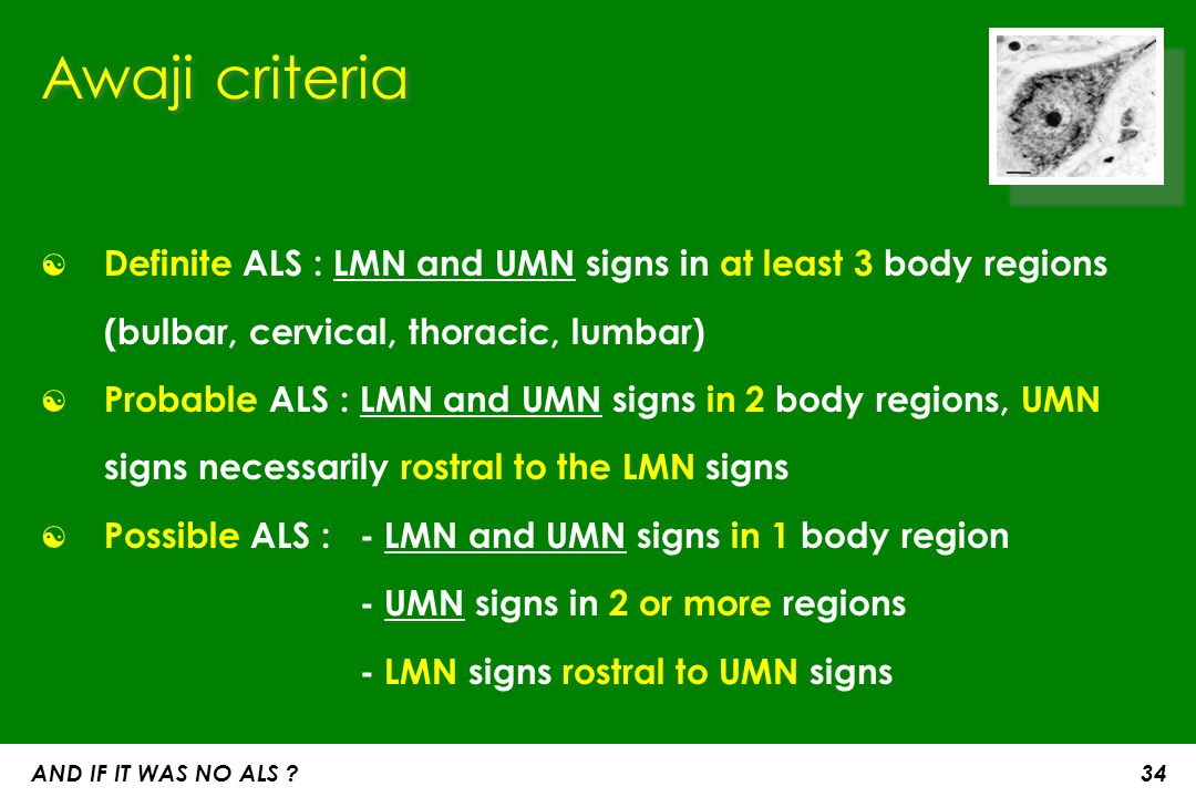Awaji criteria ☯ Definite ALS : LMN and UMN signs in at least 3 body regions (bulbar, cervical, thoracic, lumbar) ☯ Probable ALS : LMN and UMN signs i