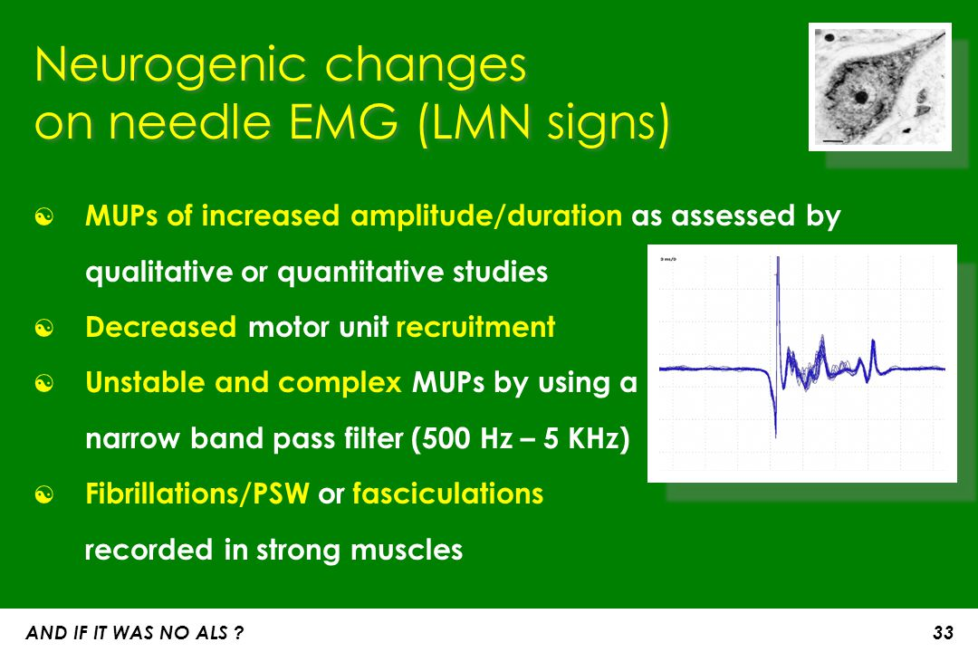 TMS (Transcranial magnetic stim) to document UMN involvement ☯ Increased central motor conduction time (CMCT) ☯ Increased absolute latency to a tested muscle, provided that distal motor conduction slowing can be excluded ☯ In patients with bulbar onset disease, an absent response to TMS in a limb is supportive of UMN lesion ☯ The triple stimulation technique (TST) has proven sensitive in detecting impairment of UMN function, but is not yet available in every Lab AND IF IT WAS NO ALS .