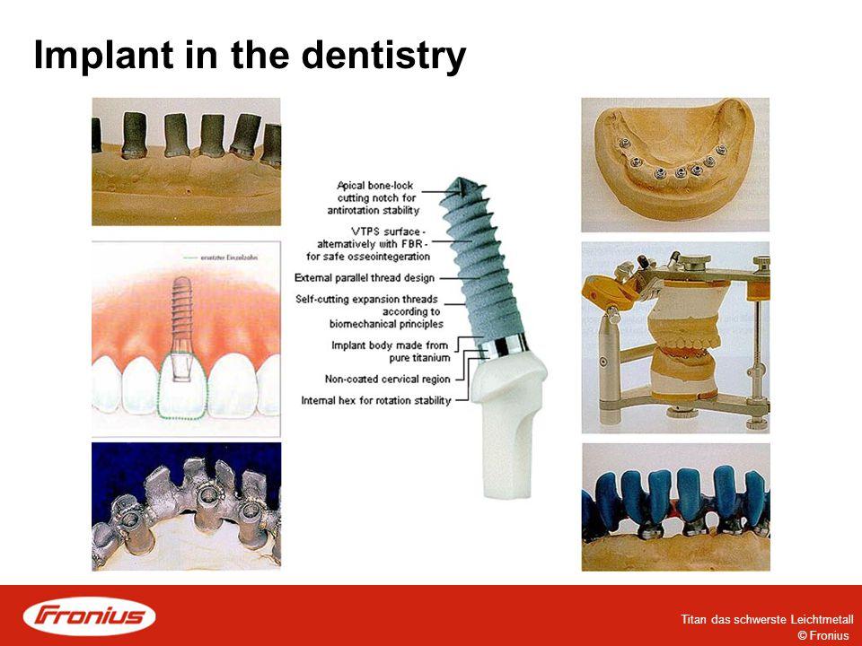 © Fronius Titan das schwerste Leichtmetall Implant in the dentistry