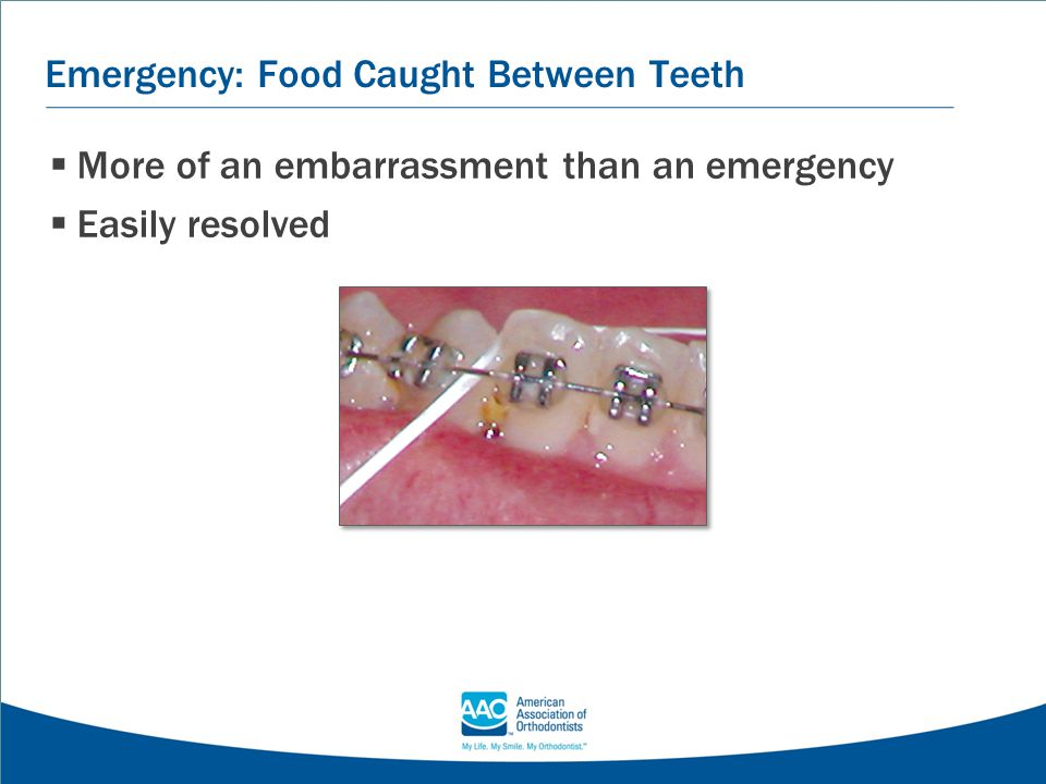 Emergency: Food Caught Between Teeth  More of an embarrassment than an emergency  Easily resolved