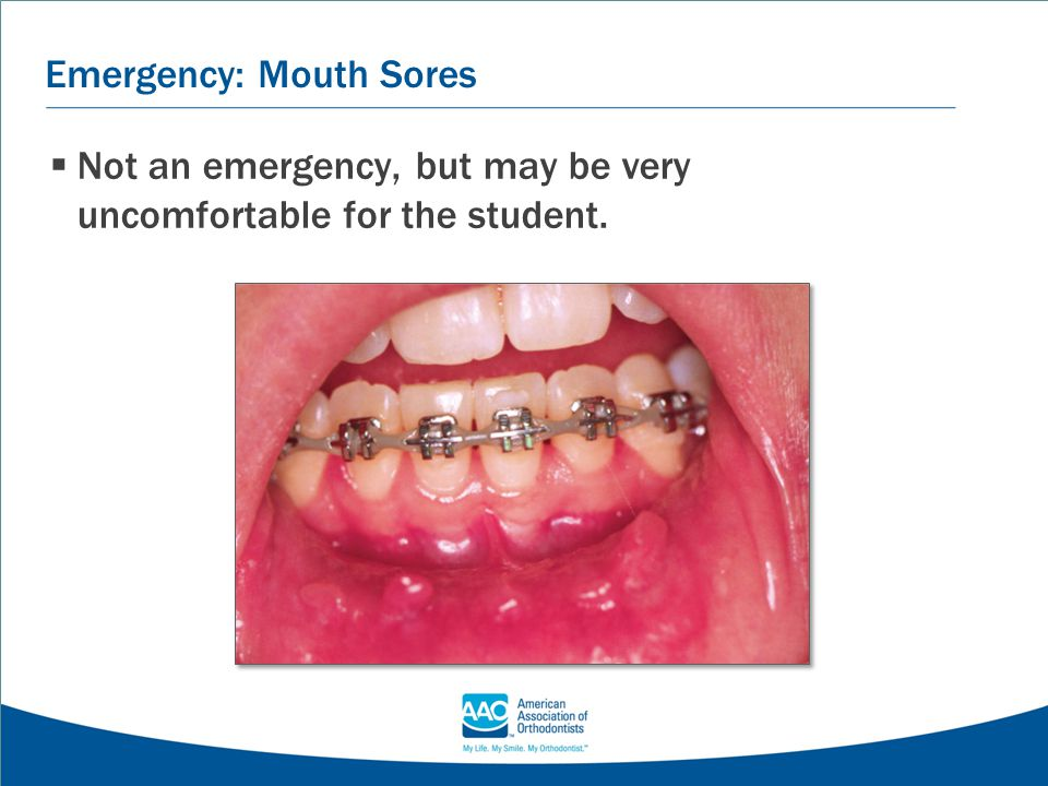 Emergency: Mouth Sores  Not an emergency, but may be very uncomfortable for the student.