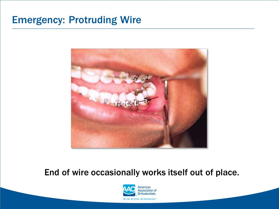 Emergency: Protruding Wire End of wire occasionally works itself out of place.