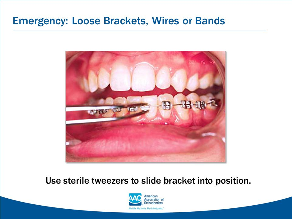Emergency: Loose Brackets, Wires or Bands Use sterile tweezers to slide bracket into position.