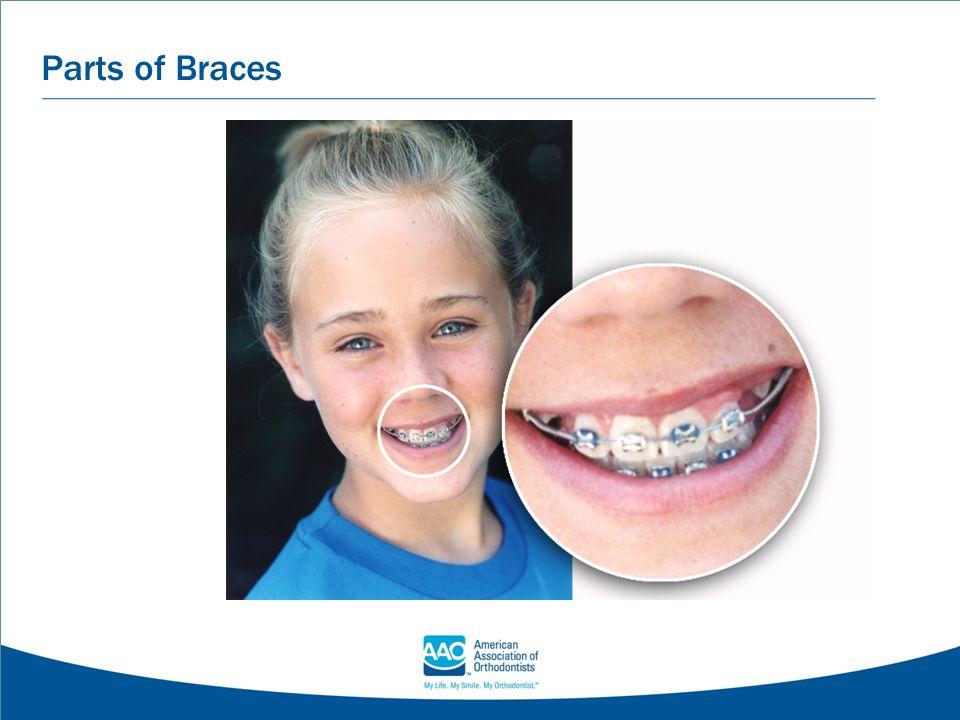 Parts of Braces