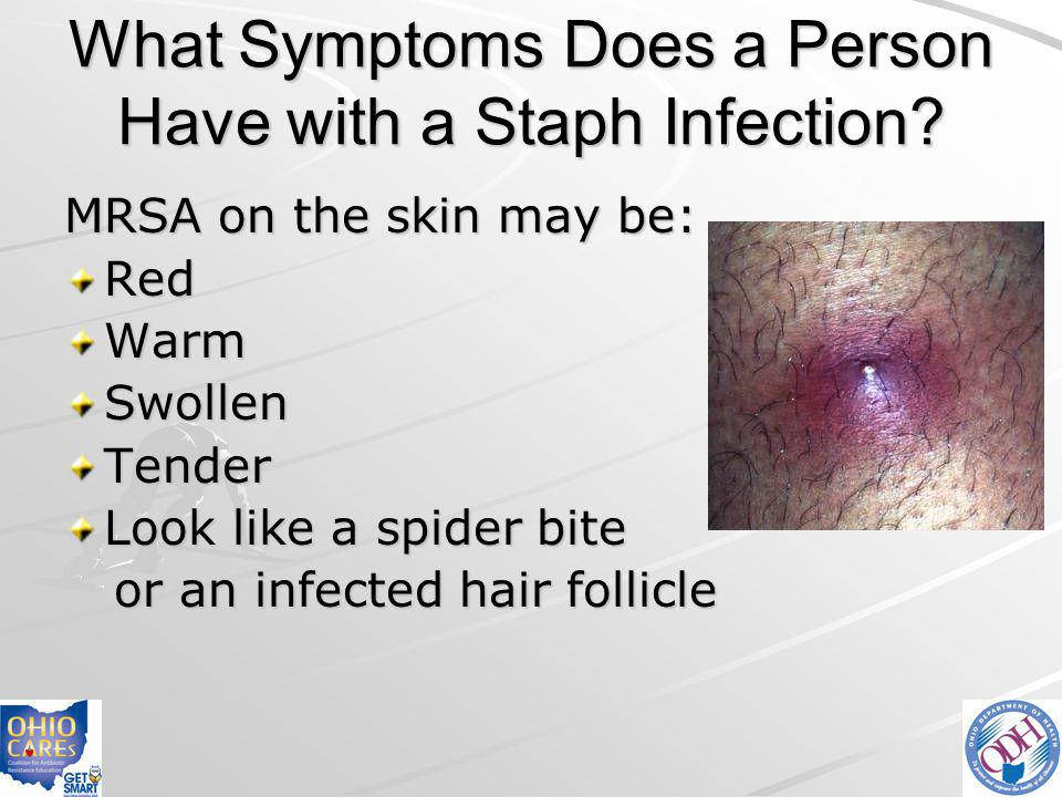 What Symptoms Does a Person Have with a Staph Infection? MRSA on the skin may be: RedWarmSwollenTender Look like a spider bite or an infected hair fol