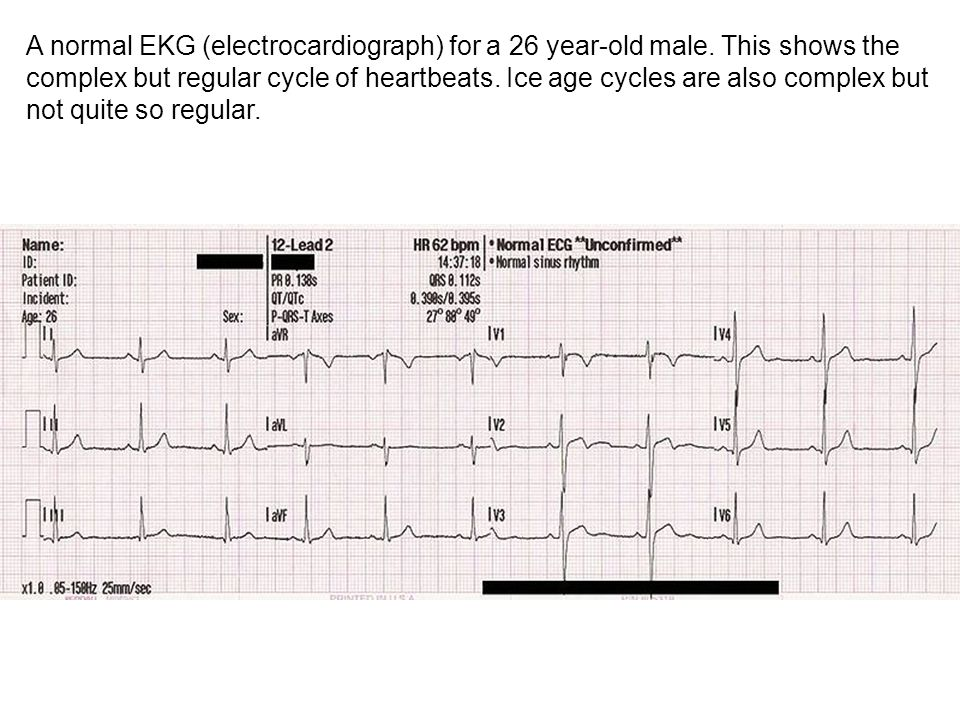 A normal EKG (electrocardiograph) for a 26 year-old male.