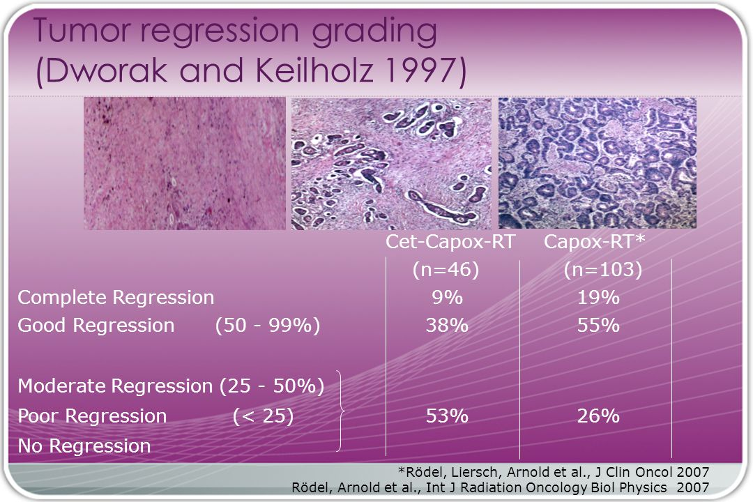 Tumor regression grading (Dworak and Keilholz 1997) Cet-Capox-RTCapox-RT* (n=46) (n=103) Complete Regression 9% 19% Good Regression (50 - 99%) 38% 55%