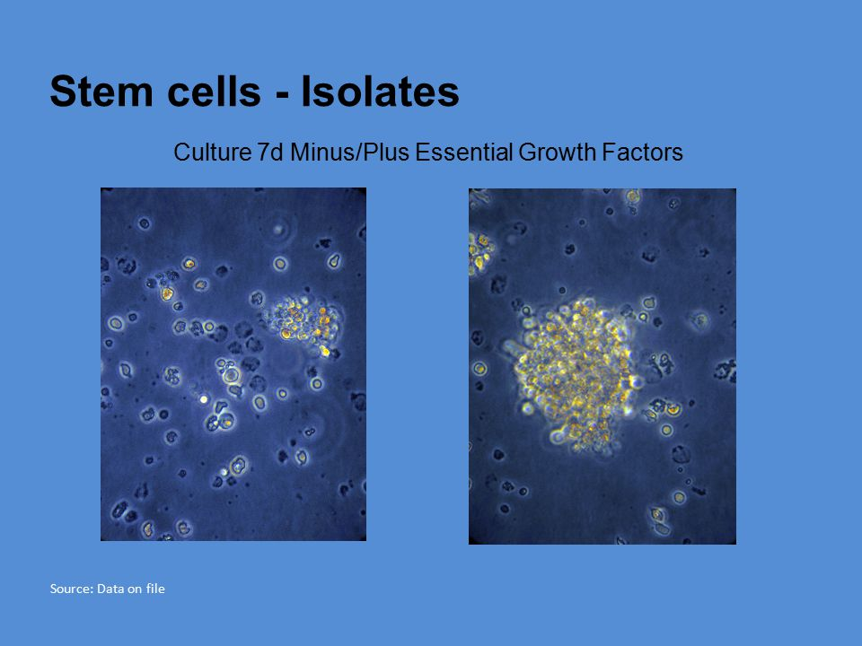 Stem cells - Isolates Culture 7d Minus/Plus Essential Growth Factors Source: Data on file