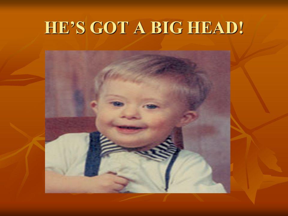 HE'S GOT A BIG HEAD!