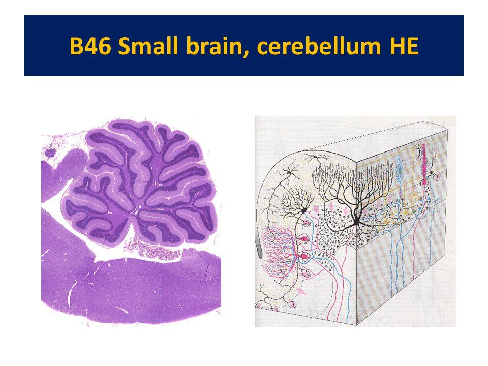 B46 Small brain, cerebellum HE