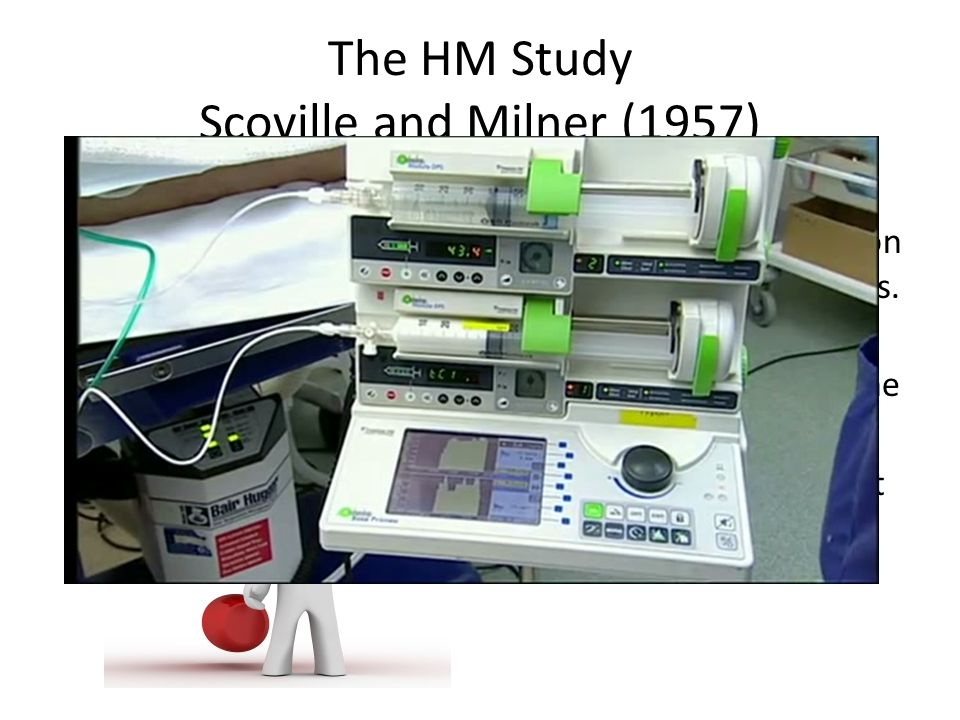The HM Study Scoville and Milner (1957) Scoville performed experimental surgery on HM to stop the seizures. Seizures did stop, but HM had amnesia for