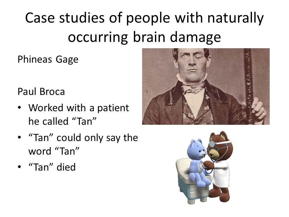 "Case studies of people with naturally occurring brain damage Phineas Gage Paul Broca Worked with a patient he called ""Tan"" ""Tan"" could only say the wo"