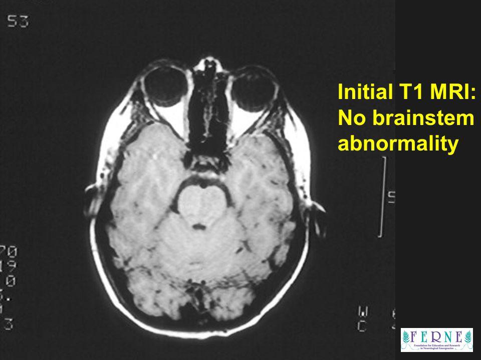 Edward P. Sloan, MD, MPH Initial T1 MRI: No brainstem abnormality