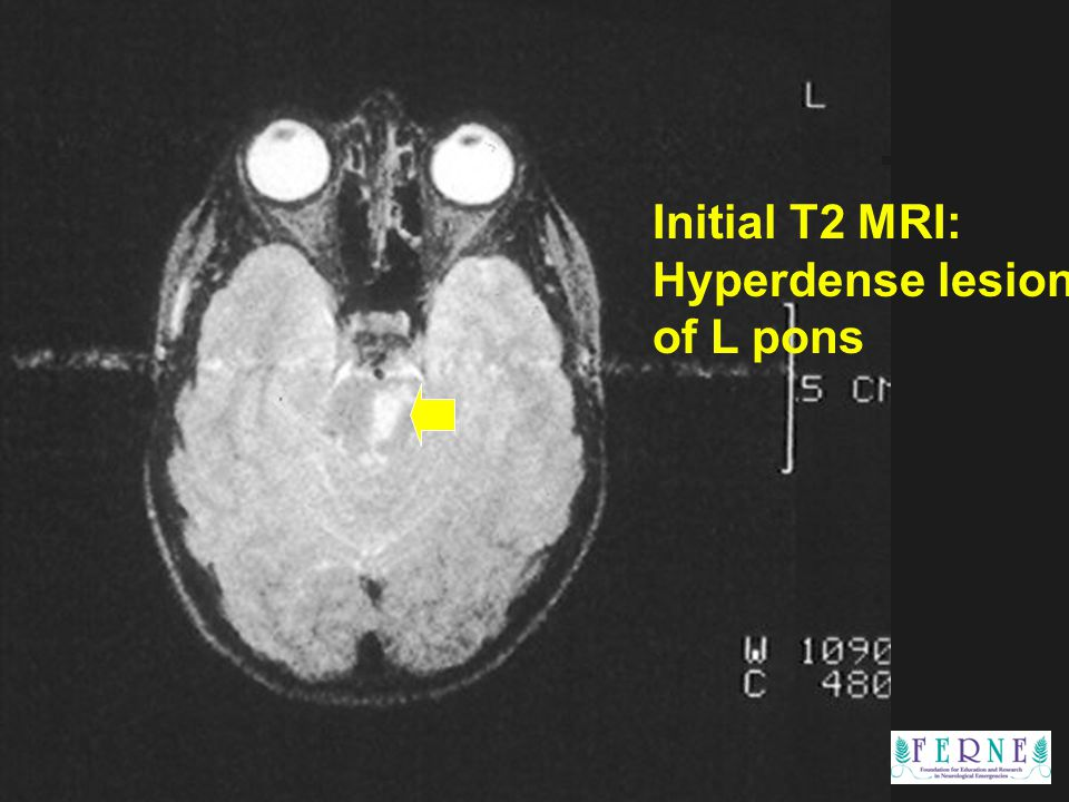 Edward P. Sloan, MD, MPH Initial T2 MRI: Hyperdense lesion of L pons