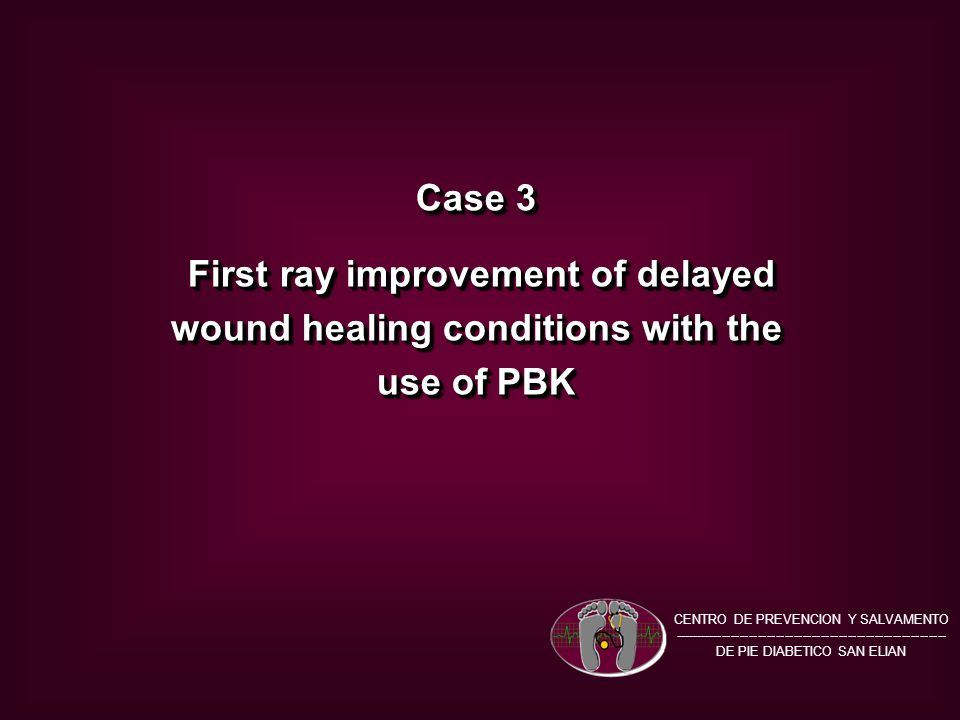 Case 3 First ray improvement of delayed wound healing conditions with the use of PBK First ray improvement of delayed wound healing conditions with the use of PBK Case 3 First ray improvement of delayed wound healing conditions with the use of PBK First ray improvement of delayed wound healing conditions with the use of PBK CENTRO DE PREVENCION Y SALVAMENTO ------------------------------------------------------------- DE PIE DIABETICO SAN ELIAN