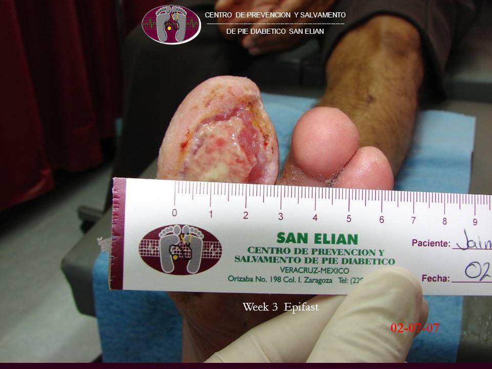 CENTRO DE PREVENCION Y SALVAMENTO ------------------------------------------------------------- DE PIE DIABETICO SAN ELIAN 02-07-07 Week 3 Epifast