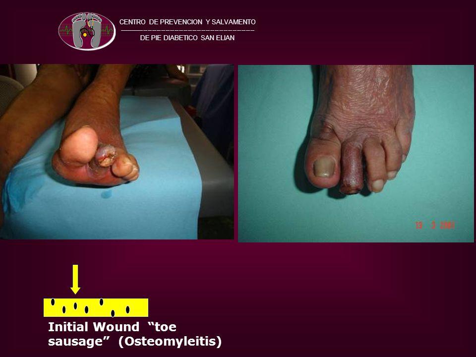 CENTRO DE PREVENCION Y SALVAMENTO ------------------------------------------------------------- DE PIE DIABETICO SAN ELIAN Initial Wound toe sausage (Osteomyleitis)