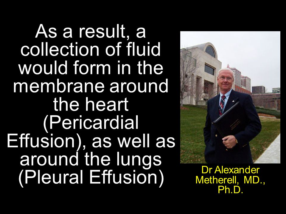 As a result, a collection of fluid would form in the membrane around the heart (Pericardial Effusion), as well as around the lungs (Pleural Effusion) Dr Alexander Metherell, MD., Ph.D.