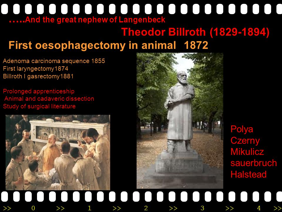 >>0 >>1 >> 2 >> 3 >> 4 >> ….. And the great nephew of Langenbeck Theodor Billroth (1829-1894) First oesophagectomy in animal 1872 Adenoma carcinoma se