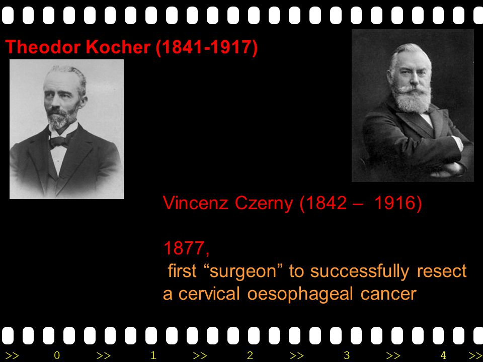 ">>0 >>1 >> 2 >> 3 >> 4 >> Vincenz Czerny (1842 – 1916) 1877, first ""surgeon"" to successfully resect a cervical oesophageal cancer Theodor Kocher (1841"