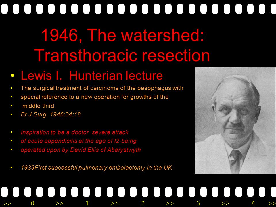 >>0 >>1 >> 2 >> 3 >> 4 >> 1946, The watershed: Transthoracic resection Lewis I. Hunterian lecture The surgical treatment of carcinoma of the oesophagu