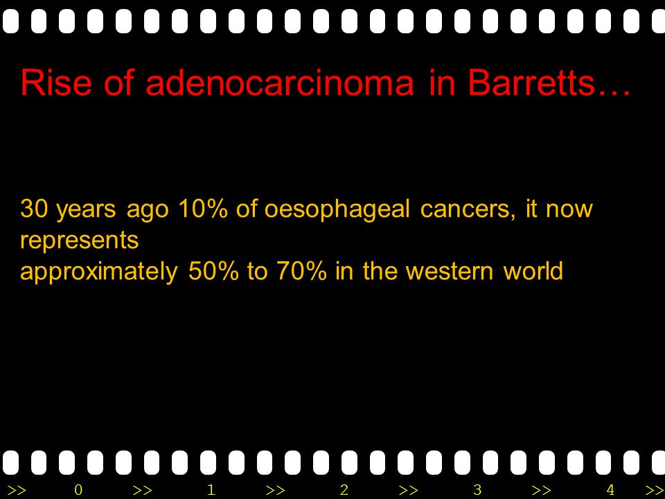 >>0 >>1 >> 2 >> 3 >> 4 >> Rise of adenocarcinoma in Barretts… 30 years ago 10% of oesophageal cancers, it now represents approximately 50% to 70% in t