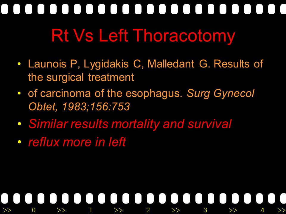 >>0 >>1 >> 2 >> 3 >> 4 >> Rt Vs Left Thoracotomy Launois P, Lygidakis C, Malledant G. Results of the surgical treatment of carcinoma of the esophagus.