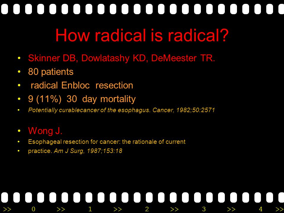 >>0 >>1 >> 2 >> 3 >> 4 >> How radical is radical? Skinner DB, Dowlatashy KD, DeMeester TR. 80 patients radical Enbloc resection 9 (11%) 30 day mortali