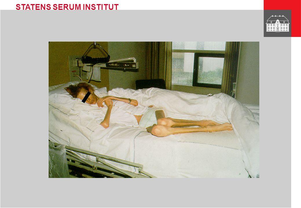 STATENS SERUM INSTITUT Antiretroviral therapy and development of resistant HIV Louise Bruun Jørgensen Department of Virology Statens Serum Institut