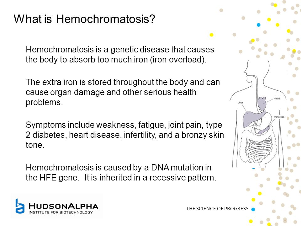 THE SCIENCE OF PROGRESS What is Hemochromatosis? Hemochromatosis is a genetic disease that causes the body to absorb too much iron (iron overload). Th