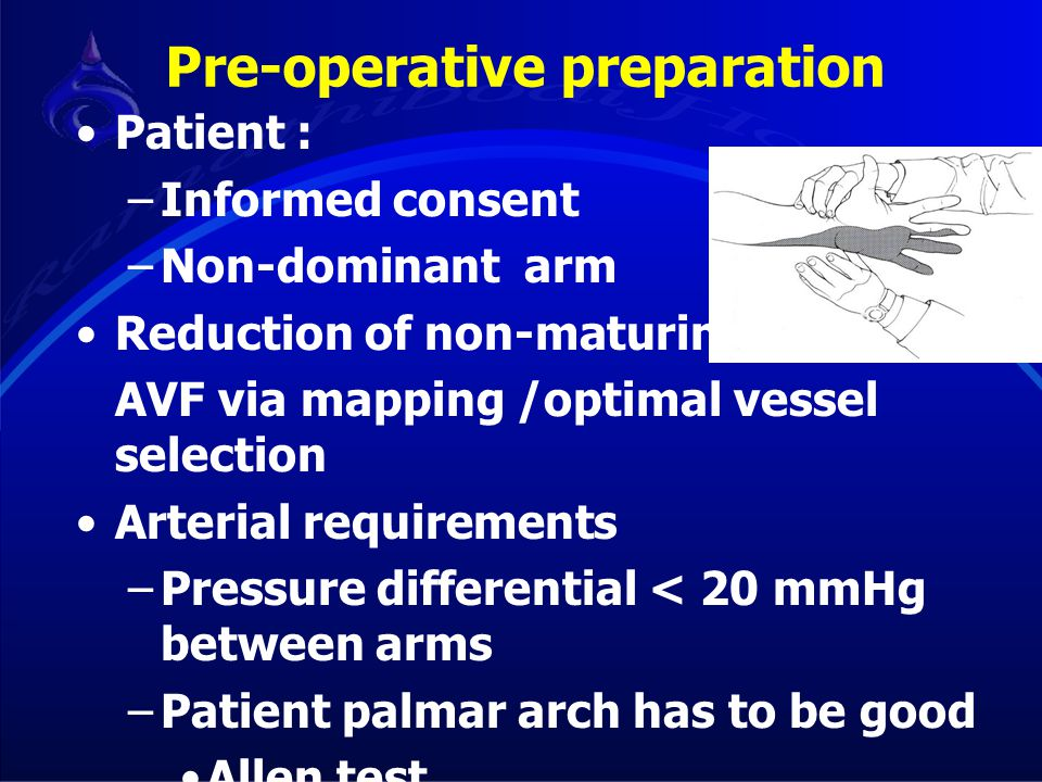Pre-operative preparation Patient : –Informed consent –Non-dominant arm Reduction of non-maturing (FTM) AVF via mapping /optimal vessel selection Arte
