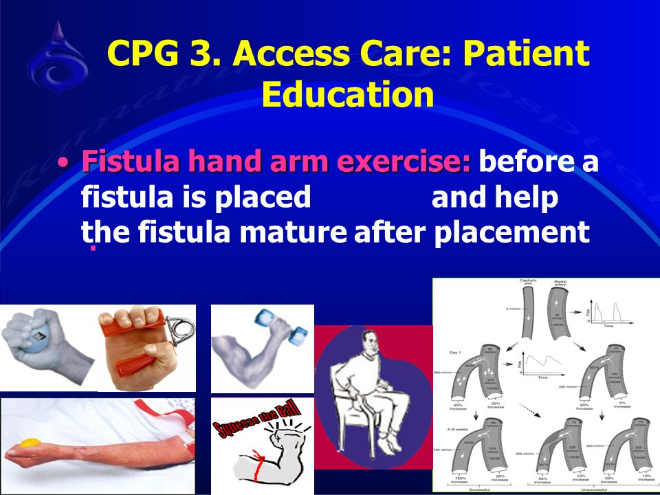 Fistula hand arm exercise:Fistula hand arm exercise: before a fistula is placed and help the fistula mature after placement. CPG 3. Access Care: Patie