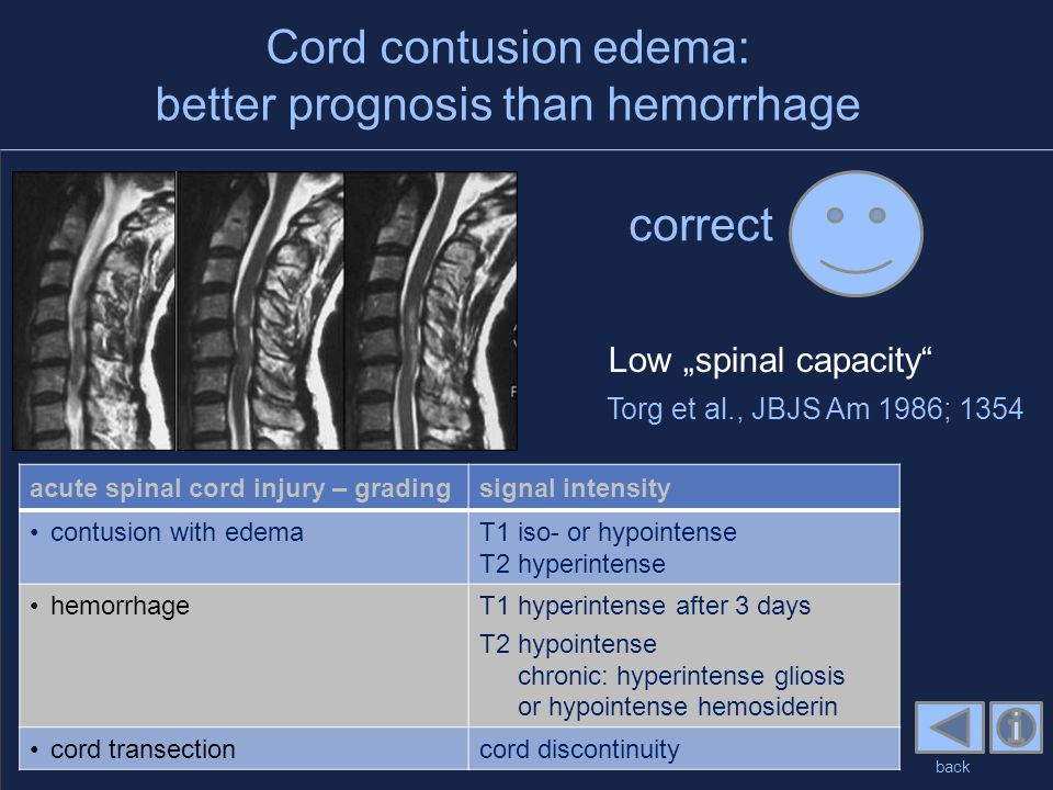 """Cord contusion edema: better prognosis than hemorrhage correct back Torg et al., JBJS Am 1986; 1354 Low """"spinal capacity"""" acute spinal cord injury – g"""